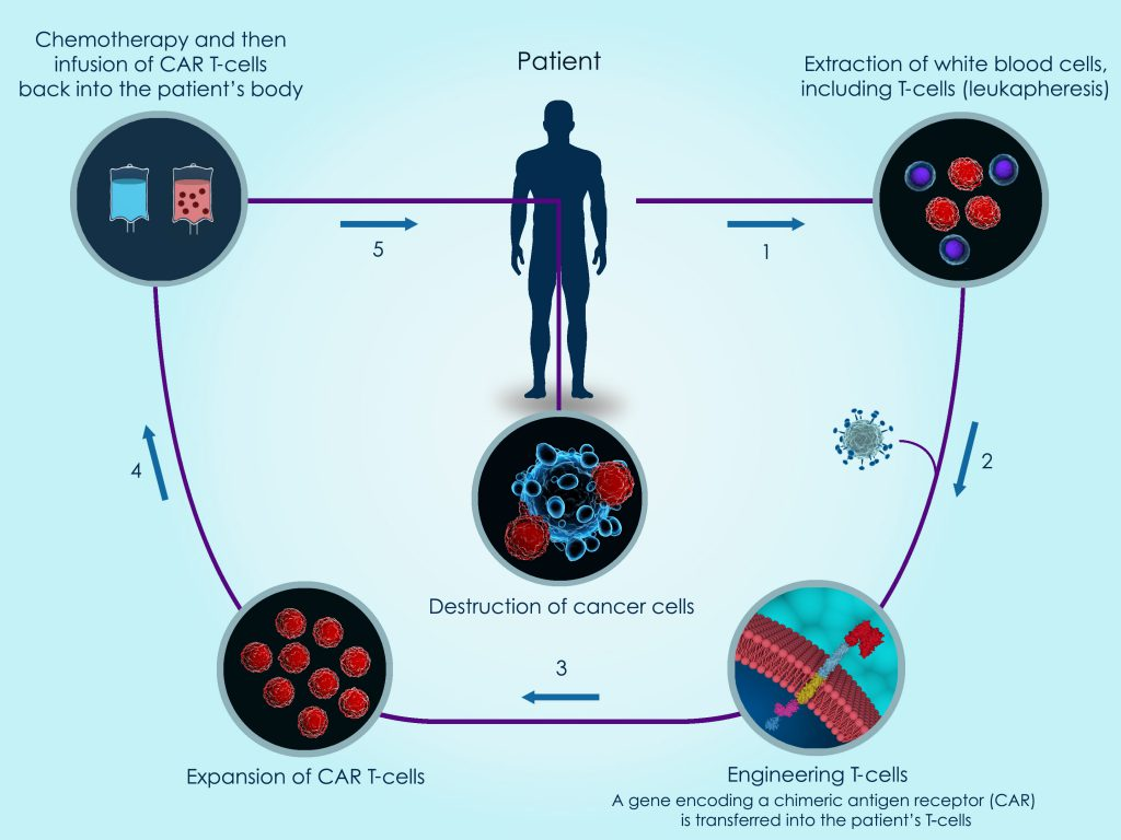 How Does Car T Cell Therapy Work The Blood And Marrow Transplant